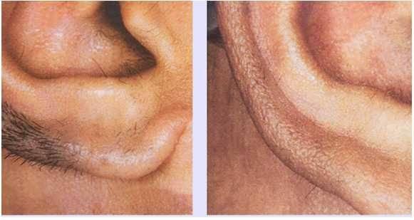 چگونه برای همیشه موهای بینی و گوش را از بین ببریم؟