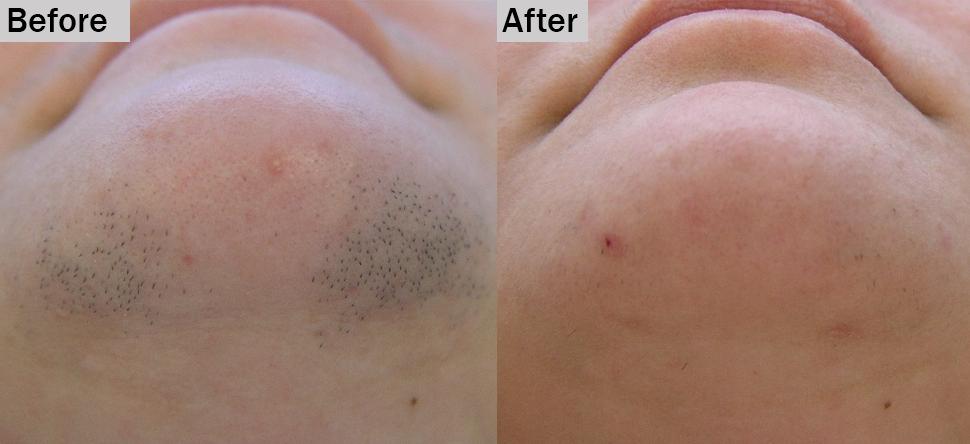 لیزر از بین بردن مو در مقایسه با الکترولیز – کدام یک بهتر است؟