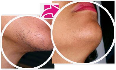 فاصله زمانی بین درمان های لیزر مو